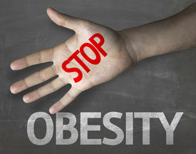 stock photo of obese children  - Creative composition with the message Stop Obesity - JPG