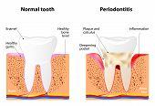 picture of gingivitis  - Periodontitis is a inflammatory diseases affecting the periodontium the tissues that surround and support the teeth - JPG