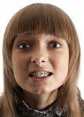 Girl Smiles With Bracket On Teeth