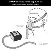 stock photo of cpap machine  - CPAP machine with air hose - JPG