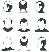 stock photo of alopecia  - Silhouette bald heads vector collection  - JPG