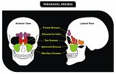 Paranasal Sinuses - parts included ( Frontal, Sphenoid, Maxillary Sinus, Ethmoid Air Cells and Eye
