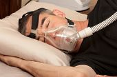 stock photo of respiratory disease  - Man with sleeping apnea and CPAP machine - JPG