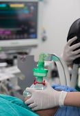 image of oxygen  - Doctor hold oxygen mask Pre Oxygenation For General Anesthesia