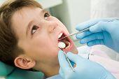 Dentes de cura