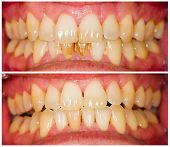 foto of dentures  - Removed plaque on incisors from patient - JPG