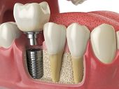Anatomy of healthy teeth and tooth dental implant in human dentura. 3d illustration poster