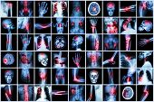 X-ray Multiple Disease Of Child And Adult ( Stroke , Arthritis , Fracture , Tuberculosis , Brain Tum
