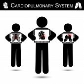 picture of tuberculosis  - Cardiopulmonary System  - JPG