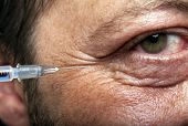 pic of collagen  - Treatment with botox or hyaluronic collagen HA injection - JPG