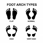 Set Of Flat Foot, High Arch poster