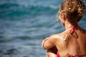 picture of sunburn  - teenage girls back with sunburn and heart of sun lotion  - JPG
