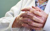 wrinkle hands