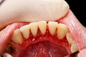 stock photo of gingivitis  - Lower incisors after periodontal treatment  - JPG