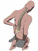 backache illustration