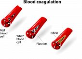image of hemostasis  - Process of blood coagulation - JPG