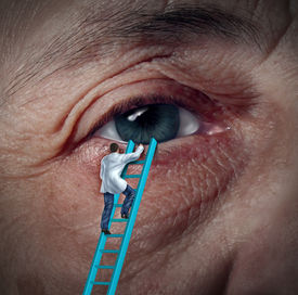 picture of cataracts  - Medical Eye Care concept with an ophthalmologist or optometrist climbing a ladder to givie a diagnosis on an aging elderly patient that may have vision problems due to cataracts or other ocular diseases - JPG