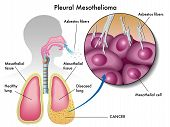 stock photo of asbestos  - medical Illustration of the effects of pleural mesothelioma - JPG