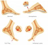 foto of big-foot  - Turf Toe Injuries - JPG
