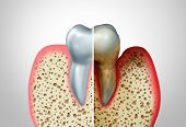 Gum Disease Comparison With A Healthy Tooth And An Unhealthy One With Periodontitis And Poor Oral Hy poster