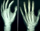 A pair of hands X-rayed
