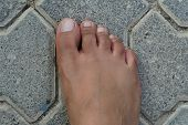Close Up Of Womens Foot Isolated On A Concrete Floor Background. Foot Is Ugly, Dark Brown And It Ha poster