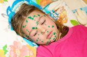 The girl suffers chickenpox