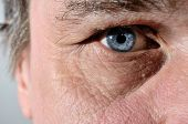 Part Of A Seniors Face With Blue Eye
