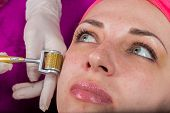 picture of medical injection  - Medical cosmetic procedure - JPG