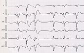 picture of beats  - Tape ECG with acute period macrofocal widespread anterior myocardial infarction and pair ventricular premature beats - JPG