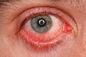 pic of pink eyes  - Chronic conjunctivitis eye with a red iris and pus close - JPG