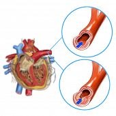 heart artery blockage