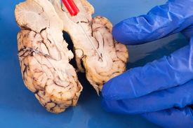 stock photo of frontal lobe  - Cross - JPG