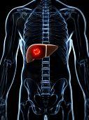 3d rendered illustration of the male liver