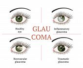 Glaucoma Chronic Eye Pathology. Eye Disease. Ophthalmology Health. Glaucoma Types. Vector Flat Eye H poster