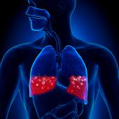 Pulmonary Edema - Blood in Lungs