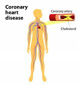stock photo of coronary arteries  - Coronary heart disease is a condition in which the heart - JPG