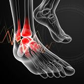 3d render medical illustration Ankle pain