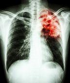 foto of tuberculosis  - film chest x - JPG