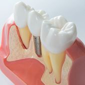 picture of oral  - Close up of a Dental  implant model - JPG