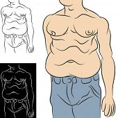 An image of an overweight man with abdominal stomach fat.