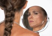 Woman With Plastic Surgery Marks On Face Looking In Mirror