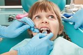 Close-up Of Little Girl Having Her Teeth Checked By Unidentified Doctor