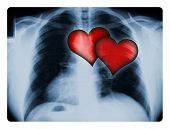 X-Ray And Two Hearts