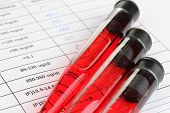 stock photo of medical supplies  - Blood in test tubes and results close up - JPG