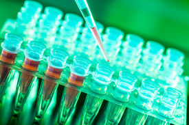 picture of histology  - Laboratory research of cancer diseases - JPG