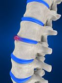 stock photo of herniated disc  - 3d rendered anatomy illustration of a slipped disc - JPG