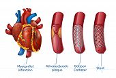Myocardial Infarction. 3d Realostic Stent In Illustration Of Human Heart With Blocked Coronary Arter poster