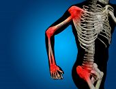 picture of joint inflammation  - Conceptual 3D human man anatomy or health design - JPG