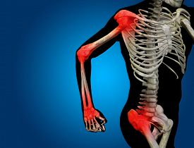 picture of hurt  - Conceptual 3D human man anatomy or health design - JPG